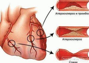 stenokardiya_-_prichini-_simptomi-_diagnostika-_lechenie_zm